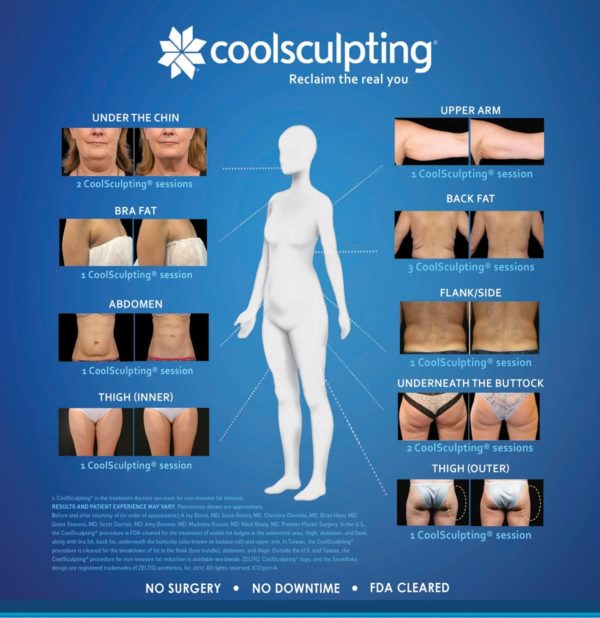coolsculpting Wellesley, MA
