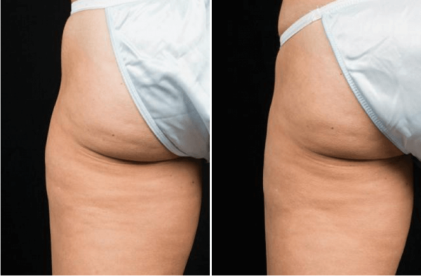 CoolSculpting back Before & After Wellesley, MA