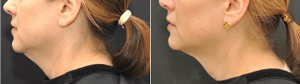 Facial Ultherapy boston BA