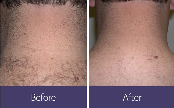 Neck laser hair removal Boston