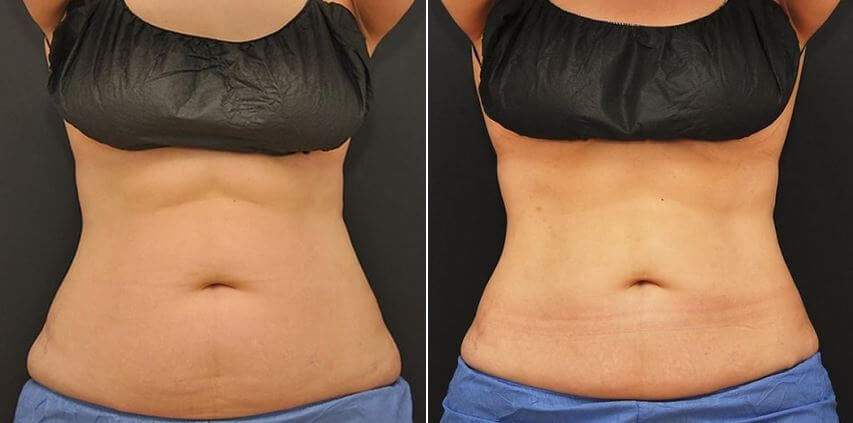 How Much Does CoolSculpting Cost in Boston